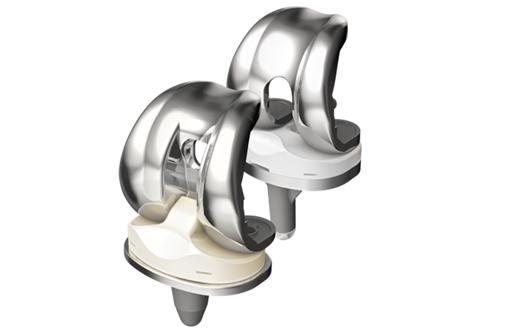 Endoprothetik Knie Praxis F 252 R Orthop 228 Die Und Unfallchirurgie